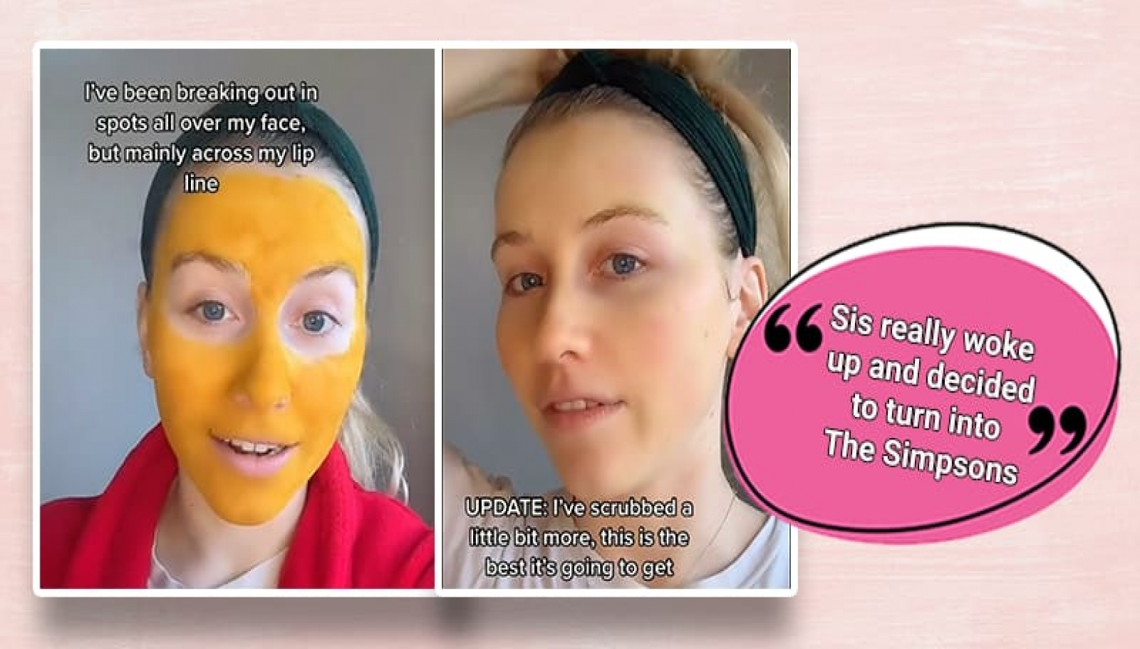 A woman with yellow face mask on and with no face mask on side by side